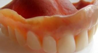 How to Prevent Gum Disease