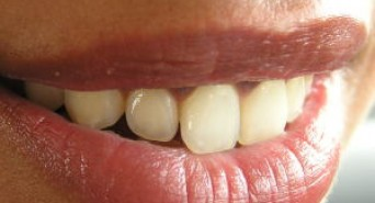 How to Prevent Yellow Teeth